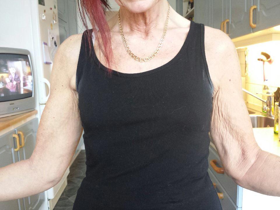 rynkig hud överarmar