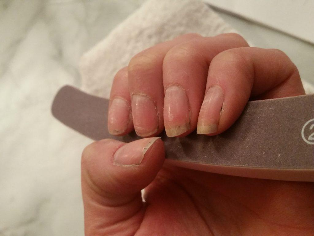 torra nagelband orsak